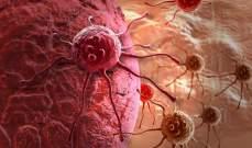 اختبارات للجينات تعطي أملاً للمرضى المصابين بأشرس أنواع سرطان البروستات