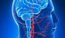 مادة الدوبامين الكيميائية مسؤولة عن تعزيز الذكاء البشري