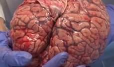 تصنيع جهاز طبي في جامعة بإيران لتحفيز للدماغ عبر التيار الكهربائي المتداخل
