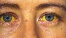 """أهالي عين الذهب ناشدوا """"الصحة"""" مساعدتهم بعد انتشار حالات مرض اليرقان"""