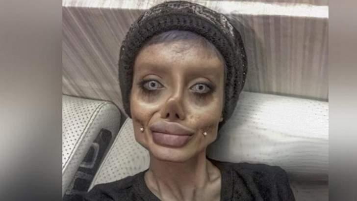 قامت بـ50 عملية تجميل كي تبدو مثل أنجيلينا جولي