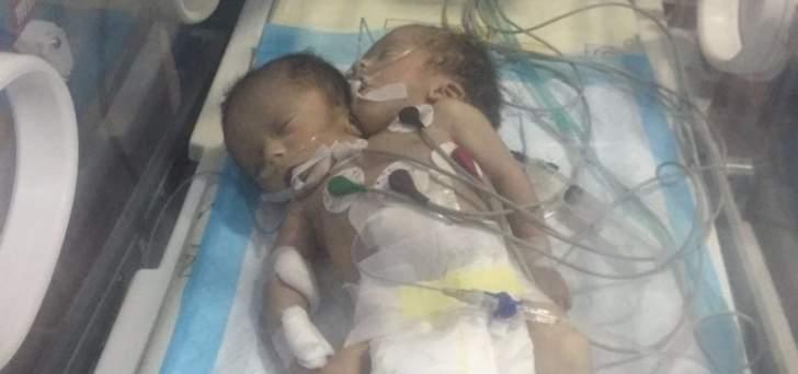 النشرة: نازحة سورية أنجبت توأما ملتصقا ببعضه في جب جنين