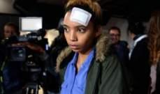 بالصورة- عارضة أزياء ضحية اعتداء السيدة الاولى