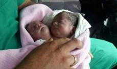 في حالة نادرة ولادة طفل برأسين في إدلب