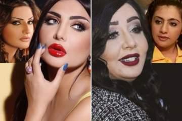تغييرات جذرية لممثلات الخليج بعد عمليات التجميل