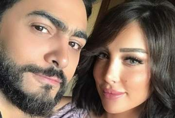 لن تصدقوا كيف كان شكل زوجة تامر حسني قبل عمليات التجميل– بالصور