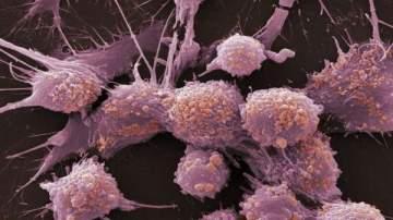 طريقة فعالة لمحاربة سرطان الثدي