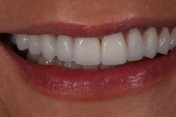 علاج لتبييض الأسنان