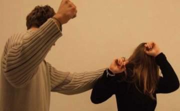 ممثلة سورية في مأزق... آثار لكمات وتعنيف واضحة على وجهها!بالصورة