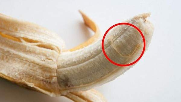 تزيلوا الموز..إعرف السبب! 9658782_1498481464.j