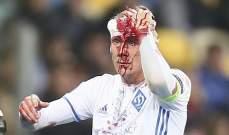 نجم دينامو كييف يخرج مضرجاً بدمائه من مباراة يونغ بويز