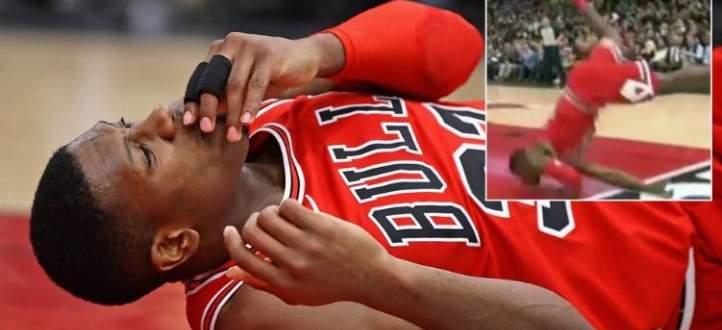 لاعب شيكاغو بولز كريس دان يتعرض لإصابة في وجهه